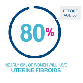 Nearly 80 percent of women will have uterine fibroids